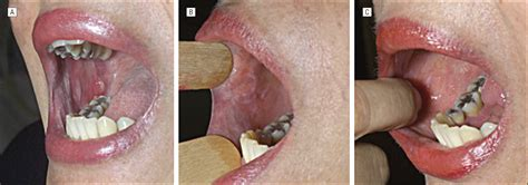 Mucocutaneous Lichen Planus With Esophageal Involvement