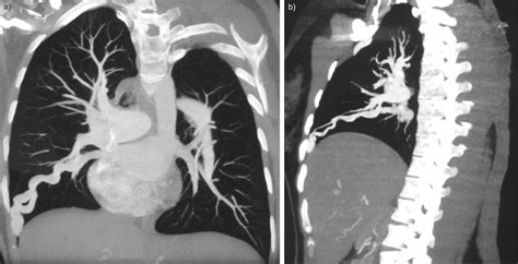 Fatal rupture of pulmonary arteriovenous malformation in