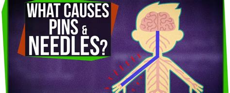 Watch: What Causes Pins And Needles?